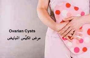 signs and symptoms of ovarian cyst
